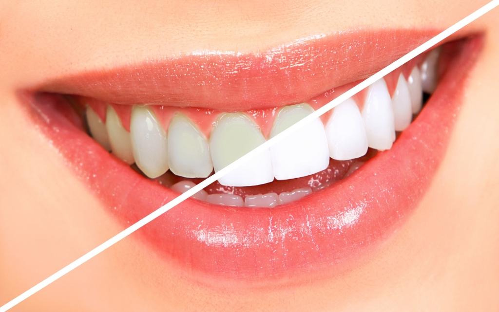 hur mycket kostar tandblekning
